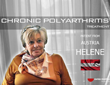 Polyarthritis stem cells treatment experience - Video