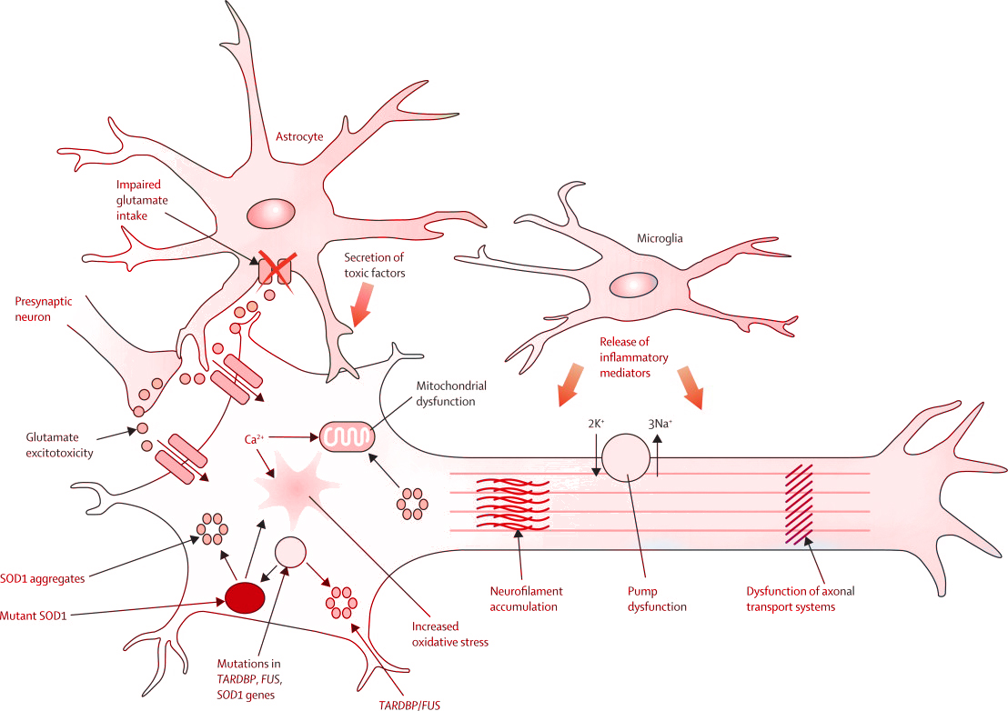 amyotrophic lateral sclerosis stem cells