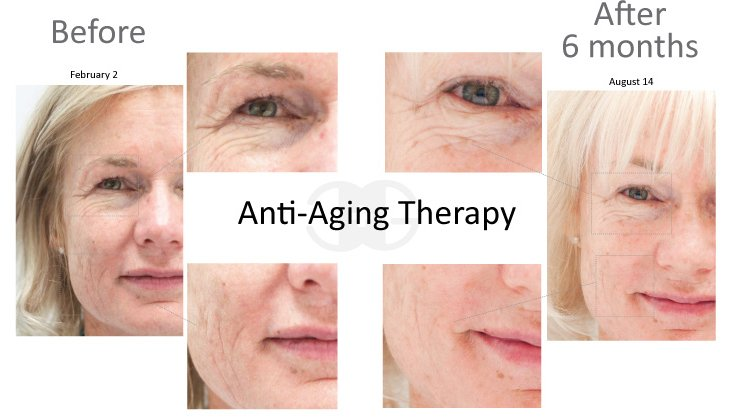 anti aging before ant after results