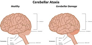 ataxia treatment with stem cells