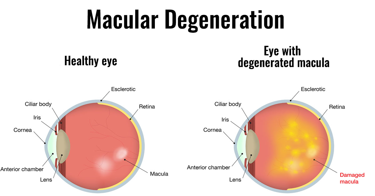 macular degeneration a group of diseases that result in a loss of detailed vision