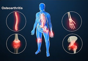 Osteoarthritis treatment with stem cells