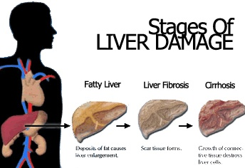 How can i repair my liver