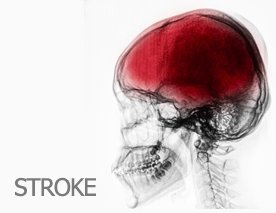 stroke treatment recovery