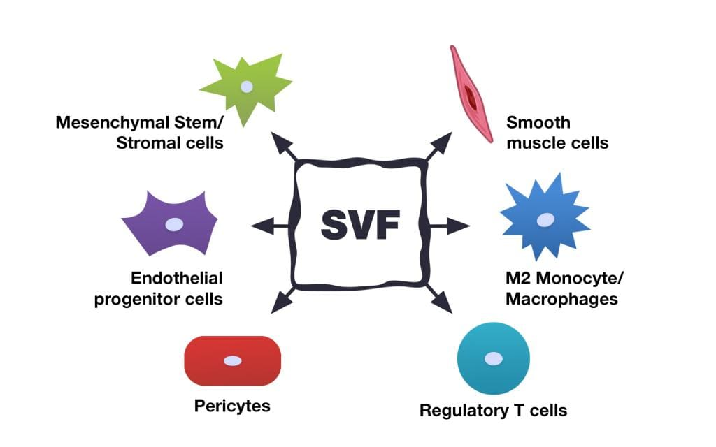 Picture 1. Cellular subsets within the SVF (modified from the original source). The SVF includes several stem cells types: multipotent mesenchymal stromal cells (multipotent MSCs), pericytes, and supra-adventitial cells. It also contains both progenitors (which can further differentiate into cells of blood vessel walls, fat tissue cells, and some others) and mature cells – fibroblasts, smooth muscle cells, endothelial cells, and fat tissue cells. The SVF also contains growth factors and other biologically active components.