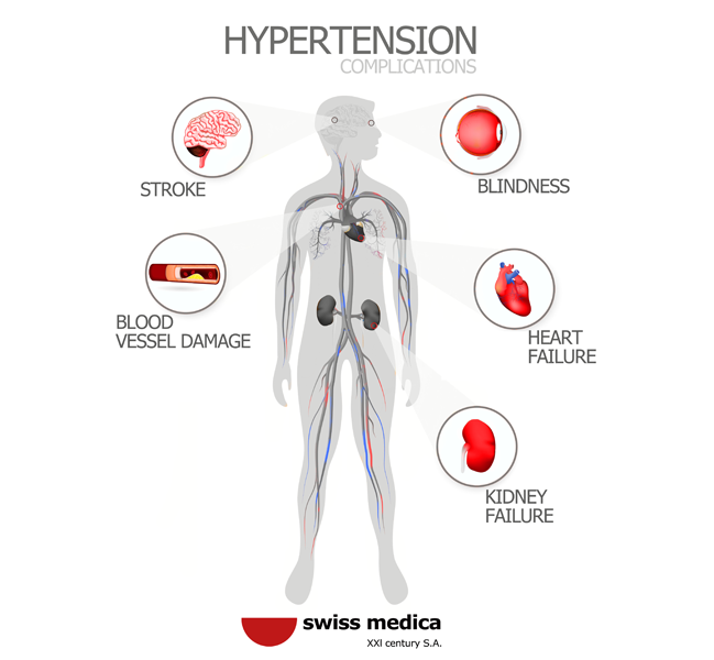 arterial hypertension symptoms
