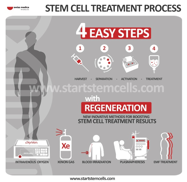 Treatment Procedure With Stem Cells Swiss Medica