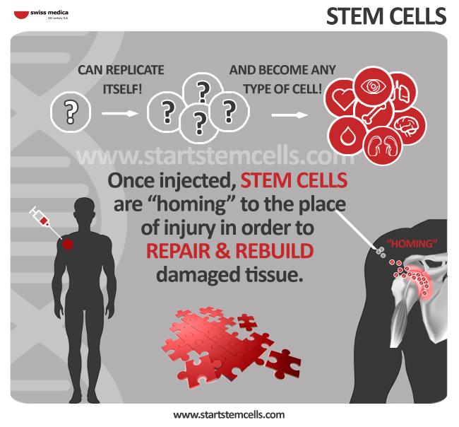 Treatment Procedure With Stem Cells Stem Cells Treatment