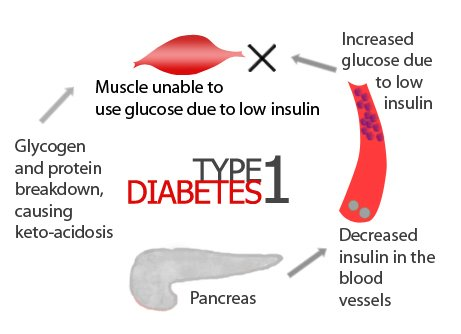 Diabetes Type 1 Treatment With Stem Cells Swiss Medica