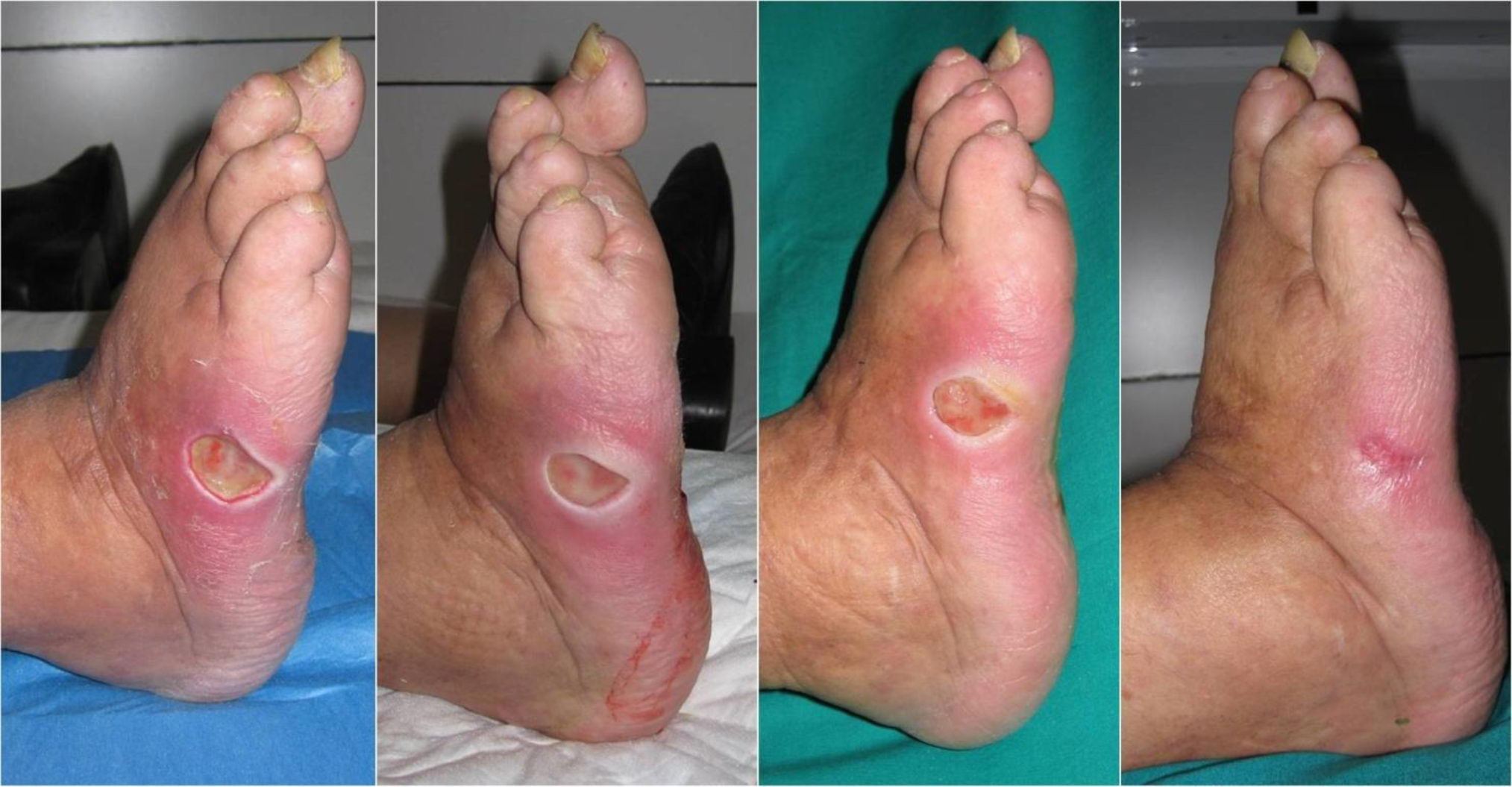 Diabetic Foot Treatment With Stem Cells Swiss Medica