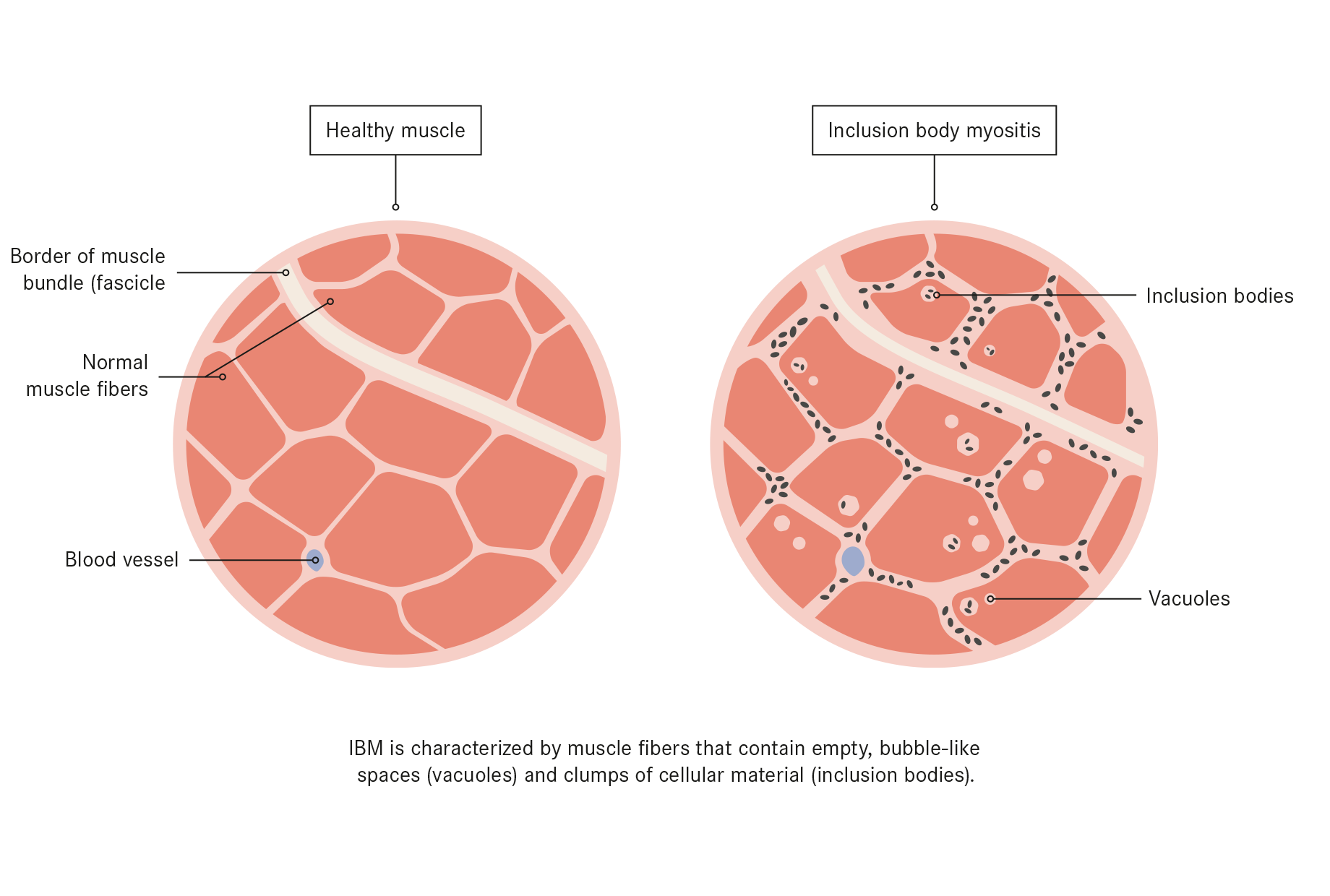 Inclusion Body Myositis treatment with stem cells | Swiss Medica
