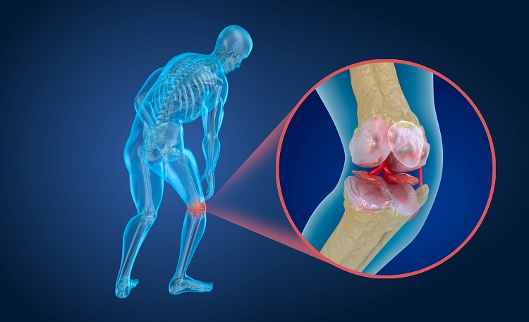 Arthritis leads to patient disability