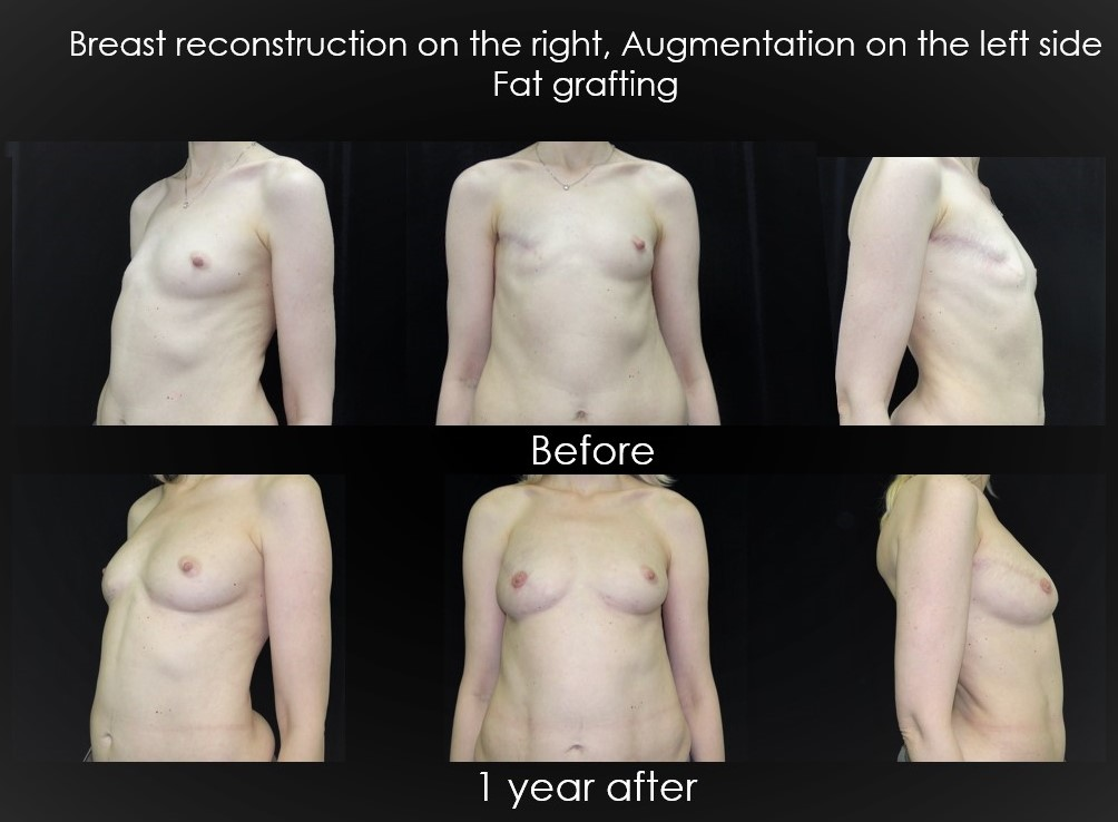 Breast reconstruction with fat grafting. Swiss Medica