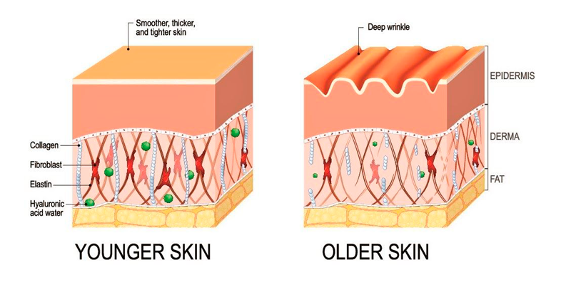 The difference between the skin of a young and older person. The destruction of collagen and elastin fibres, plus the lack of hyaluronic acid (which binds water) are the key characteristics of aged skin, and the reason for wrinkle formation, dryness, lack of turgor and elasticity.