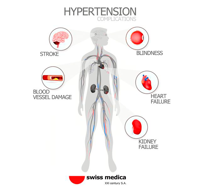 Complications from uncontrolled high blood pressure.